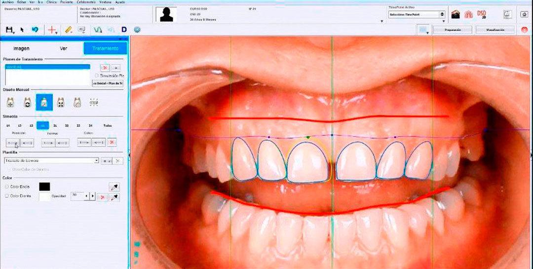 ¿En qué consiste la odontología mínimamente invasiva?